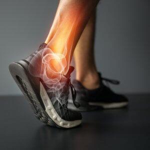 Ankle degenerative arthritis
