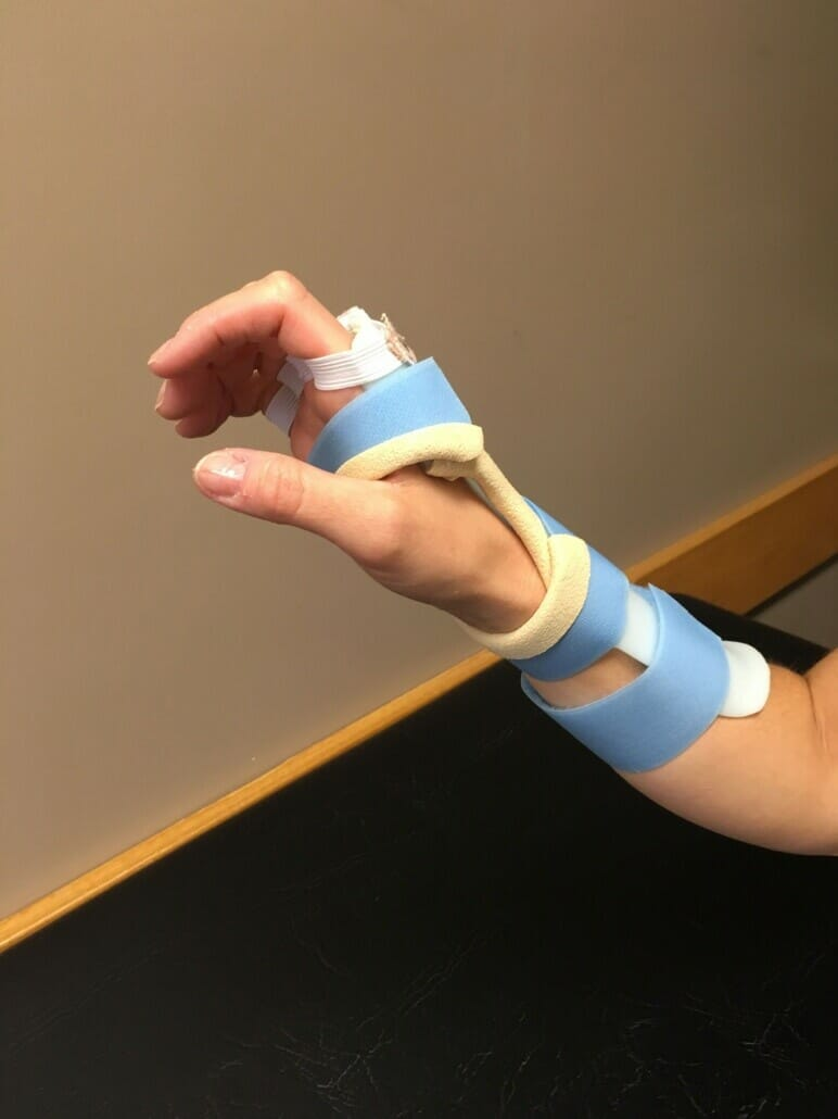 OI Custom Hand Splint