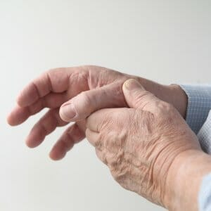 Man with thumb arthritis holding hand