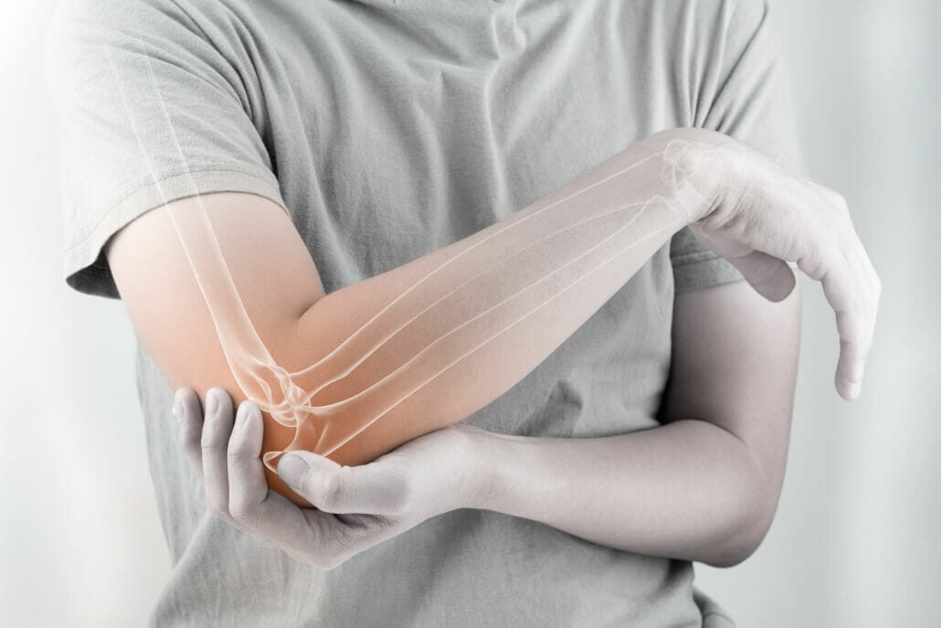 Cubital Tunnel Syndrome | Orthopedic Institute of Sioux Falls