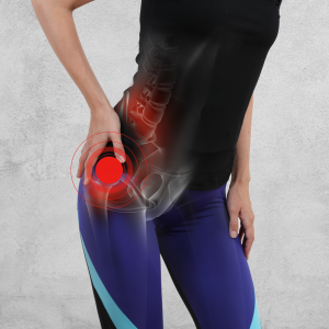 Woman with Femoroacetabular Impingement causing pain